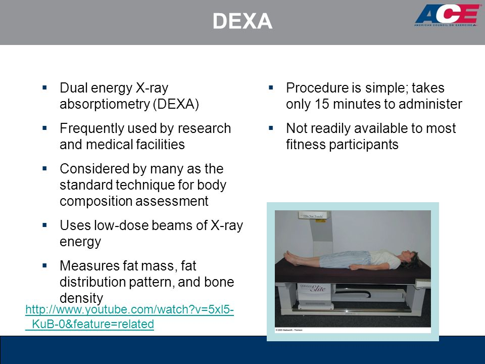 DEXA Dual energy X-ray absorptiometry (DEXA)