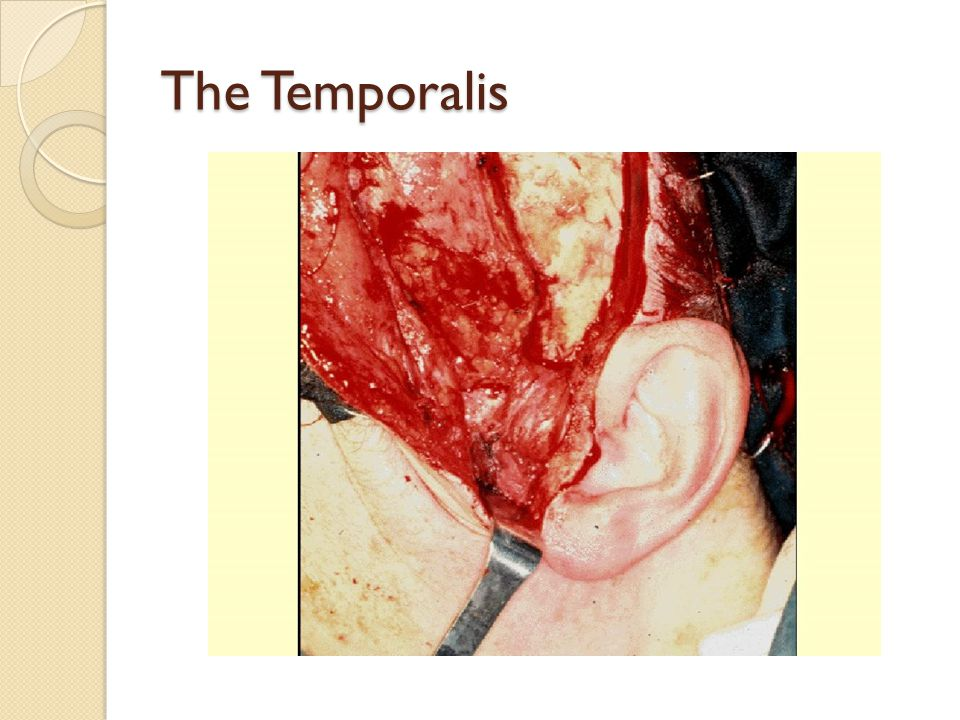 The Temporalis