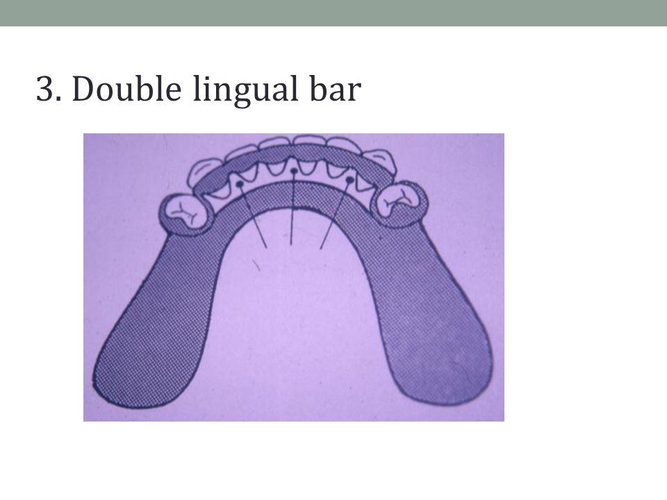3. Double lingual bar