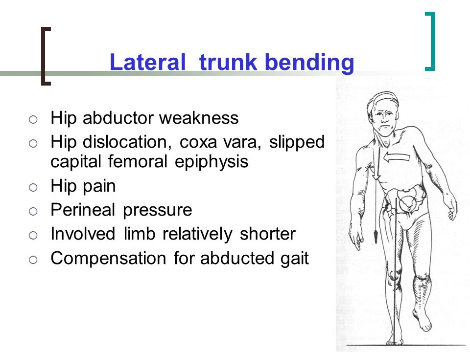 Lateral trunk bending Hip abductor weakness