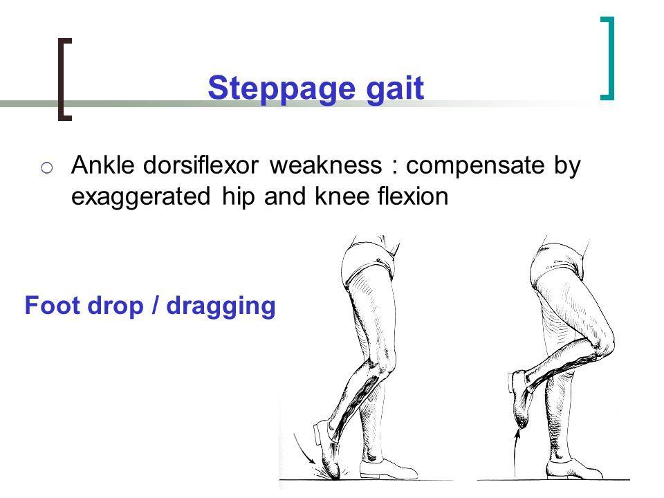 Steppage gait Ankle dorsiflexor weakness : compensate by exaggerated hip and knee flexion.