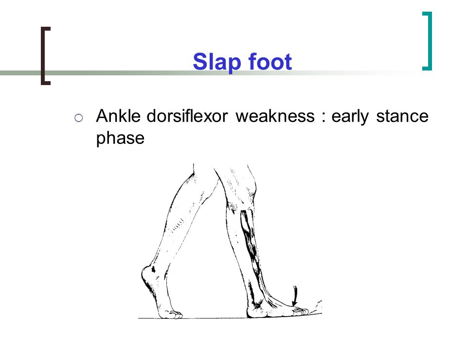 Slap foot Ankle dorsiflexor weakness : early stance phase