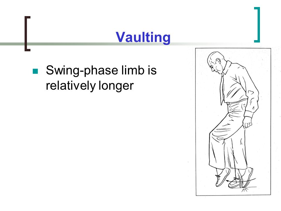 Vaulting Swing-phase limb is relatively longer