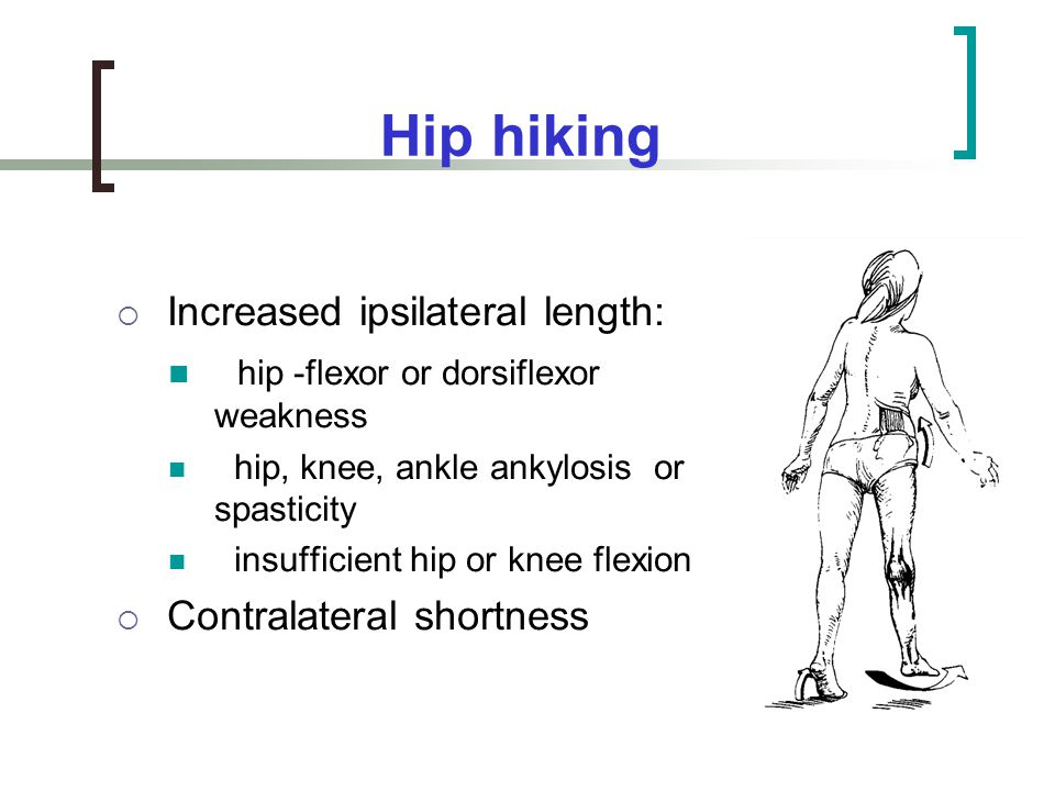 Hip hiking Increased ipsilateral length: