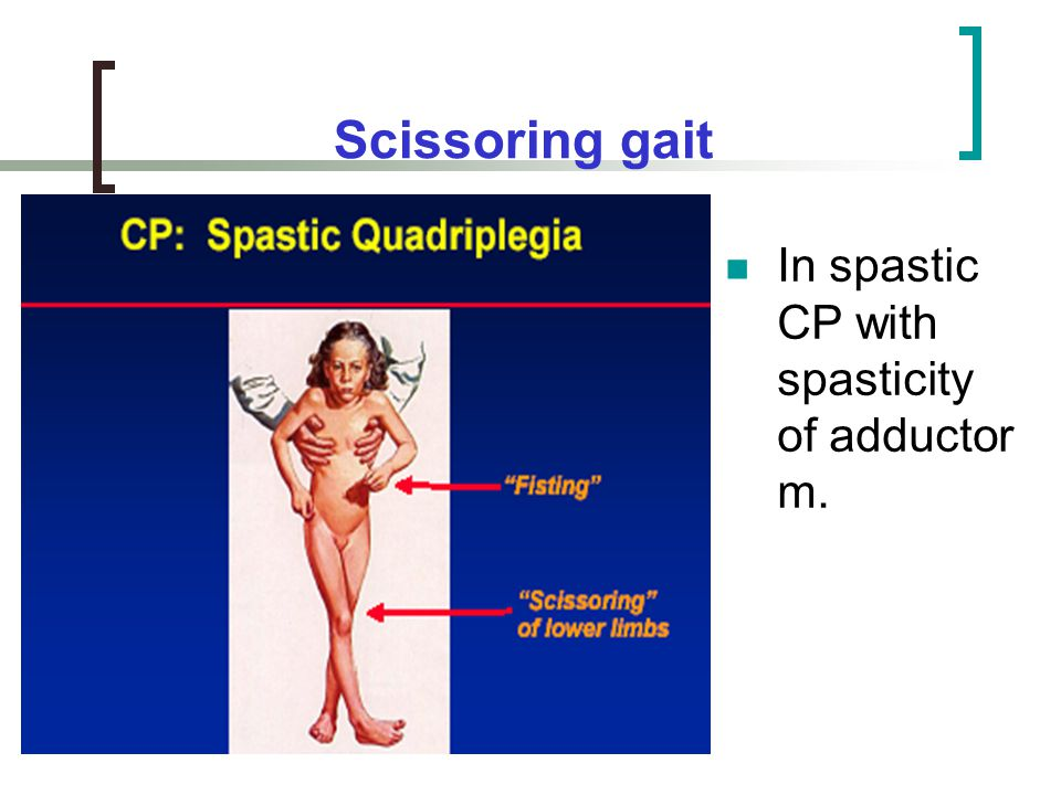 Scissoring gait In spastic CP with spasticity of adductor m.