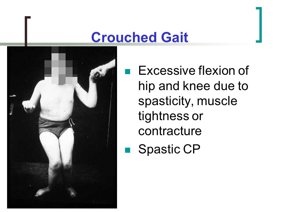 Crouched Gait Excessive flexion of hip and knee due to spasticity, muscle tightness or contracture.