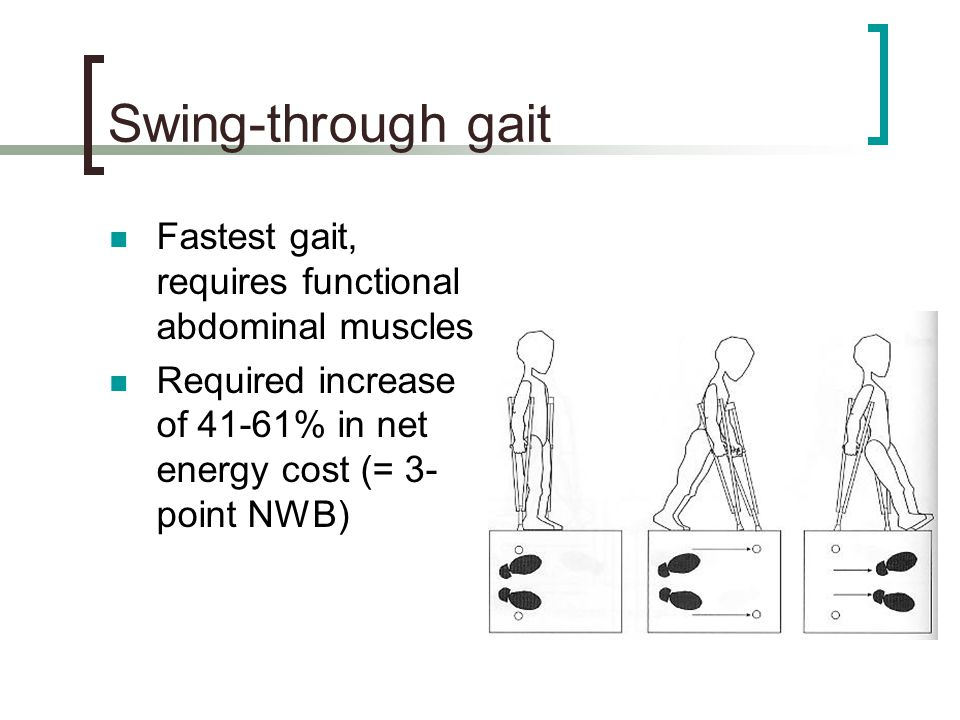 Swing-through gait Fastest gait, requires functional abdominal muscles