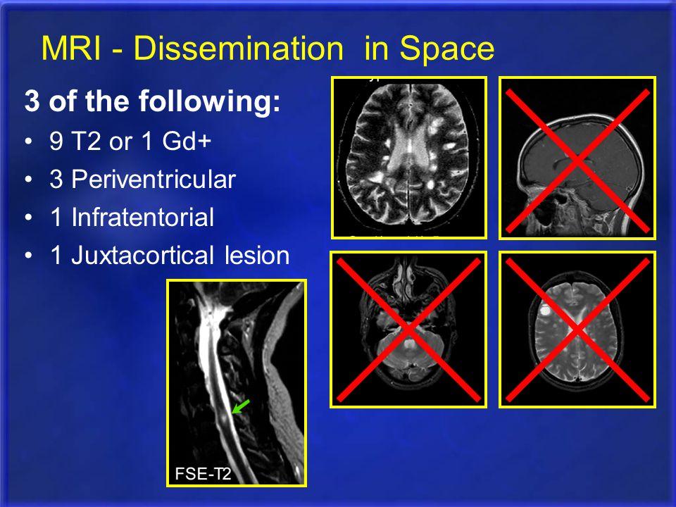 MRI - Dissemination in Space