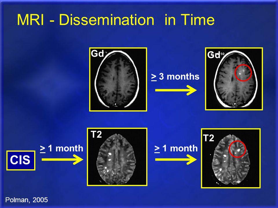 MRI - Dissemination in Time