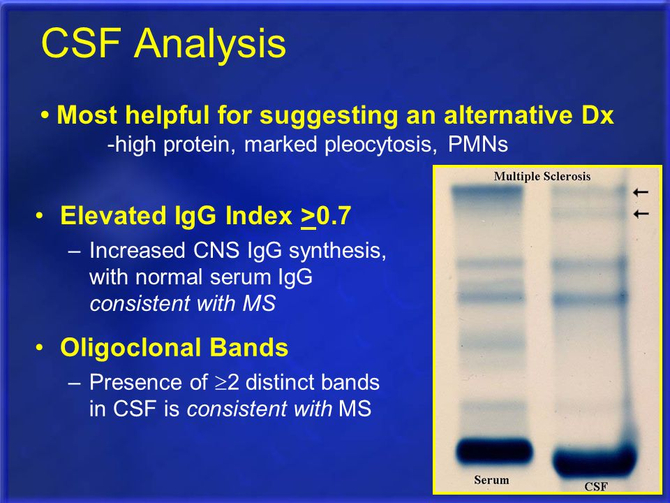 CSF Analysis • Most helpful for suggesting an alternative Dx
