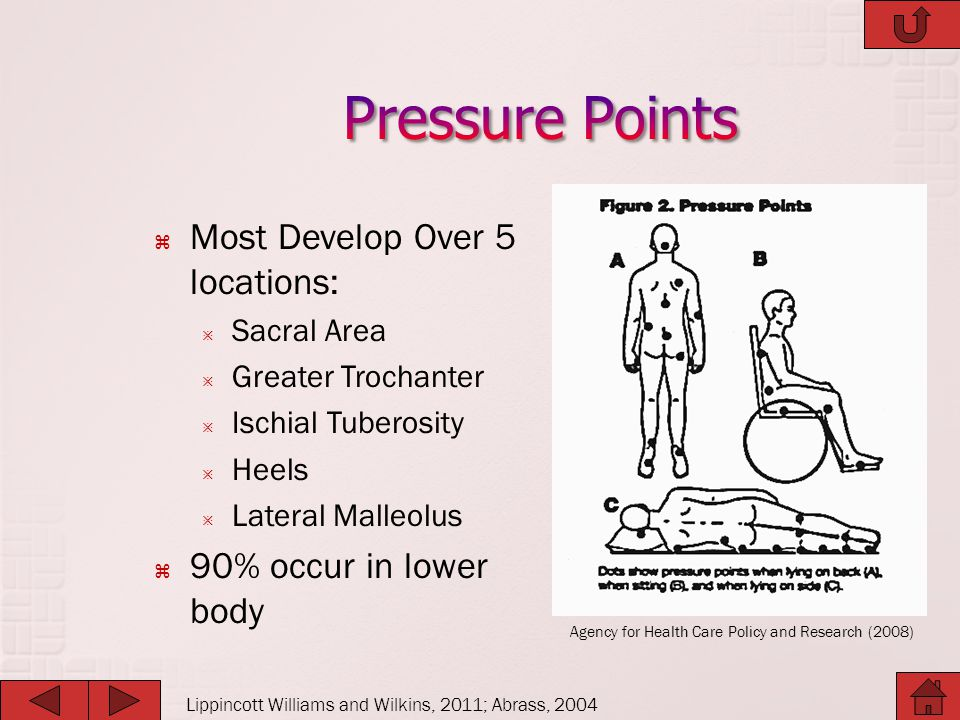 Pressure Points Most Develop Over 5 locations: 90% occur in lower body
