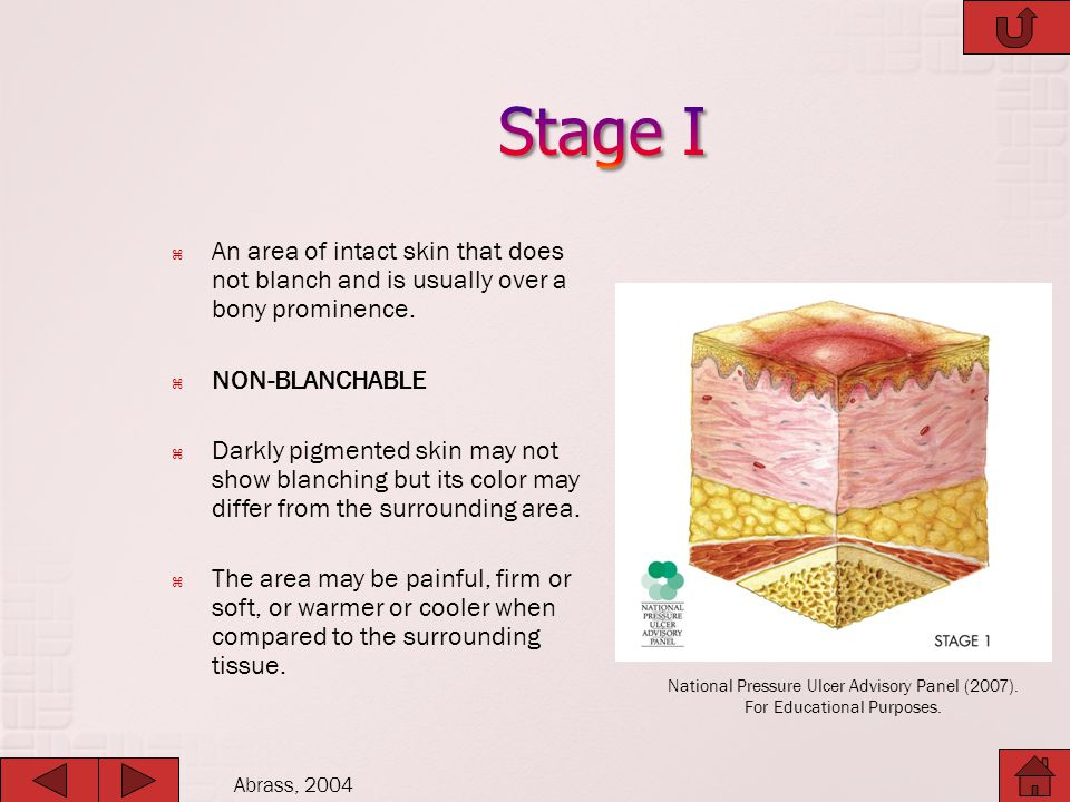 Stage I An area of intact skin that does not blanch and is usually over a bony prominence. NON-BLANCHABLE.