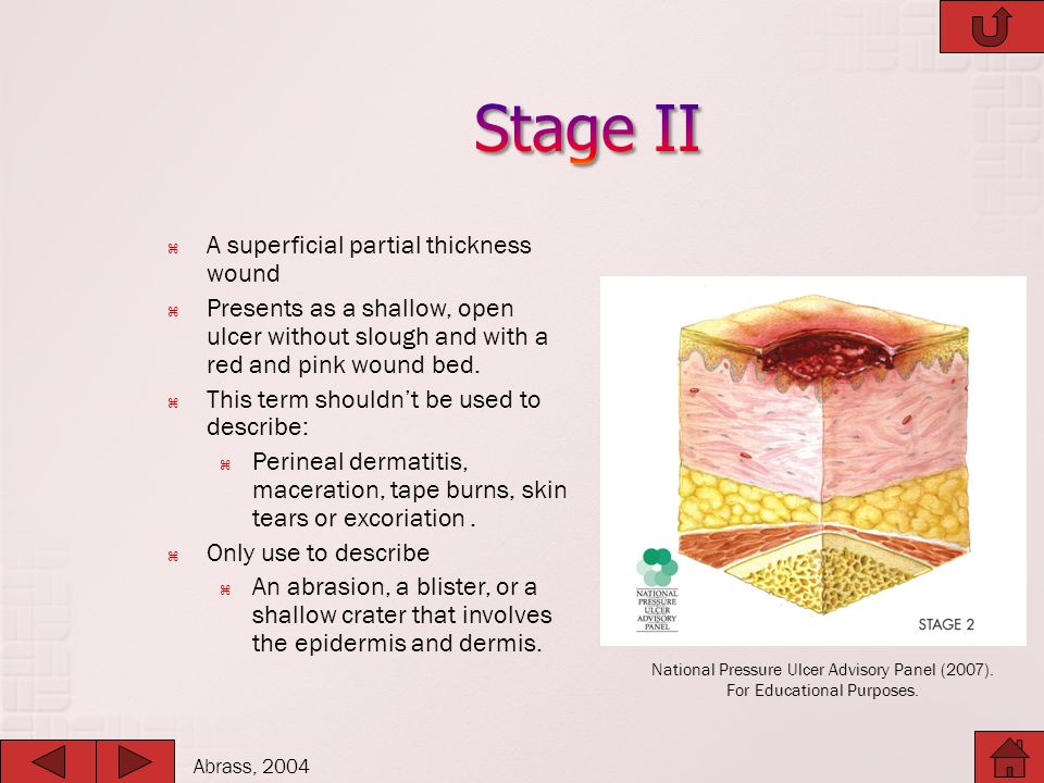 Stage II A superficial partial thickness wound