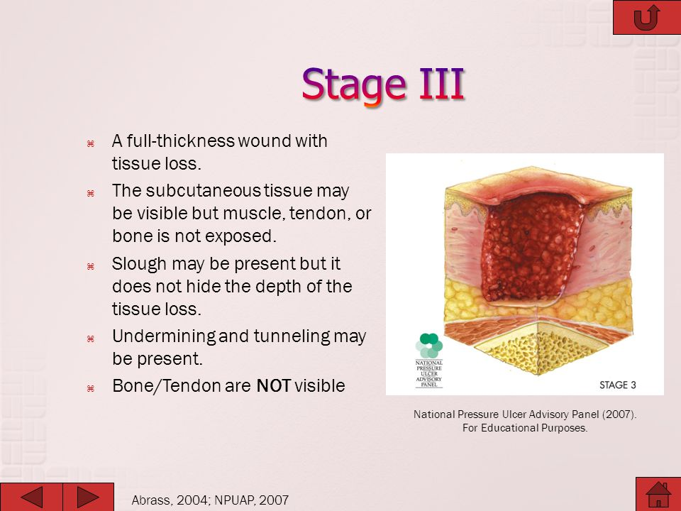 Stage III A full-thickness wound with tissue loss.
