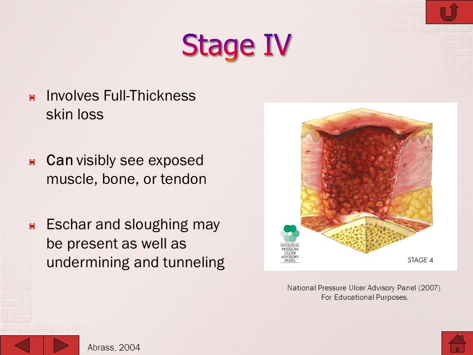 Stage IV Involves Full-Thickness skin loss
