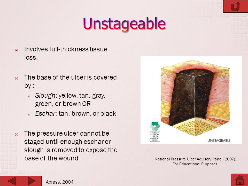 Unstageable Involves full-thickness tissue loss.