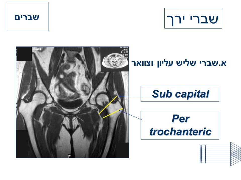 שברים שברי ירך א.שברי שליש עליון וצוואר Sub capital Per trochanteric