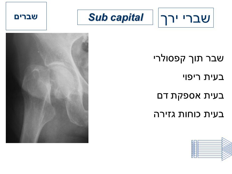 שברי ירך Sub capital שבר תוך קפסולרי בעית ריפוי בעית אספקת דם