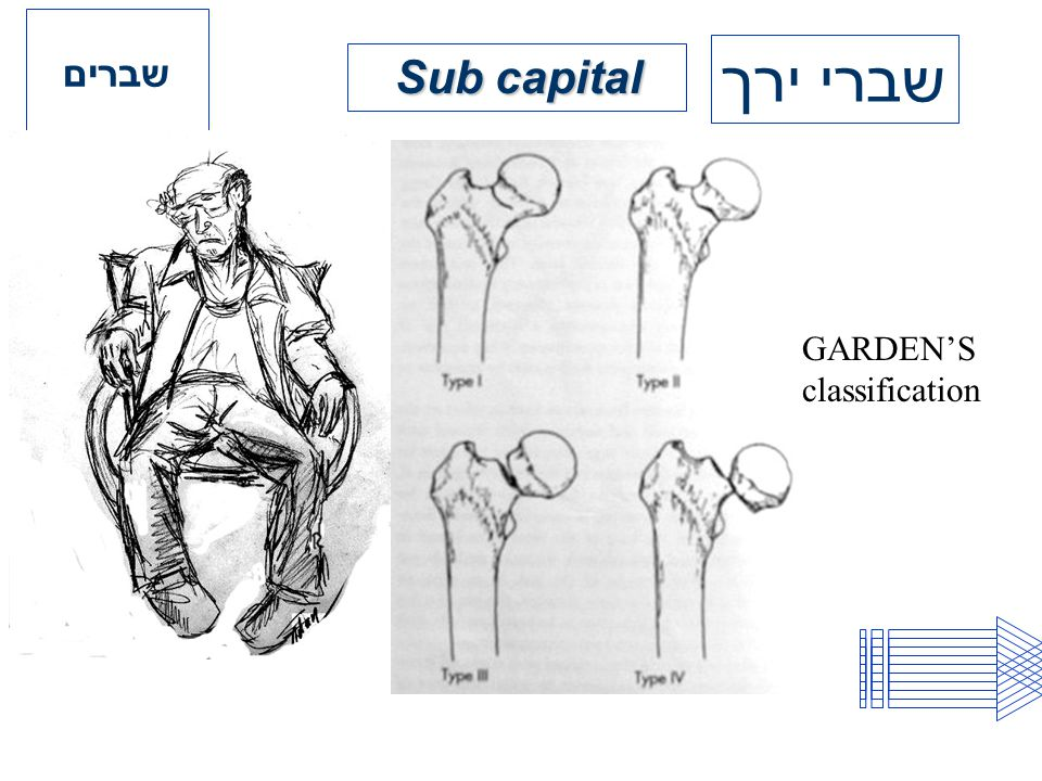 שברים שברי ירך Sub capital GARDEN'S classification