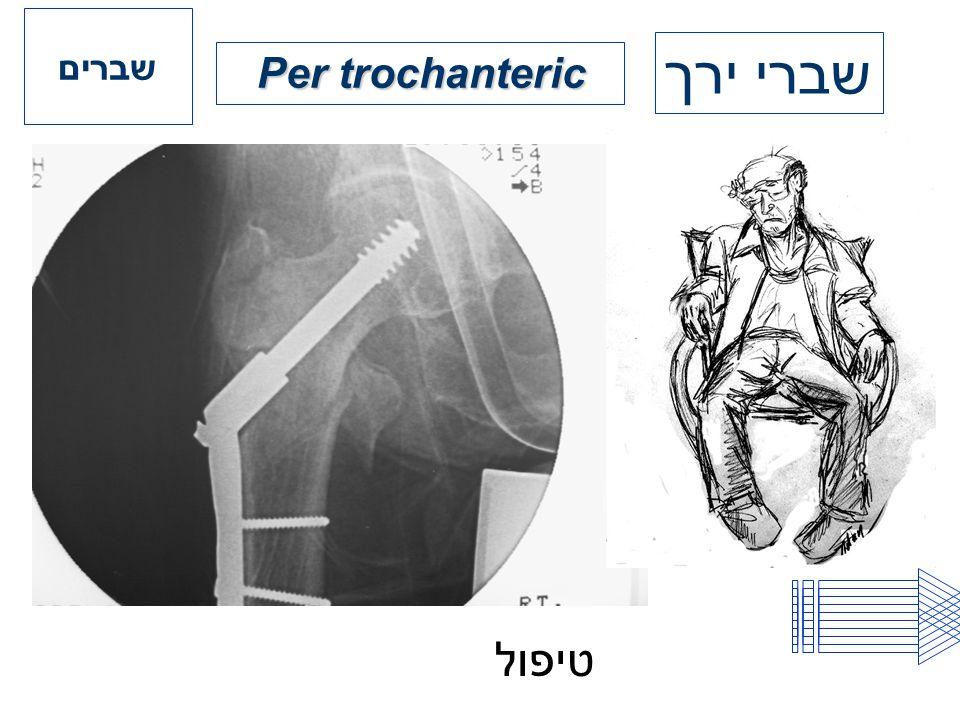 שברים שברי ירך Per trochanteric טיפול