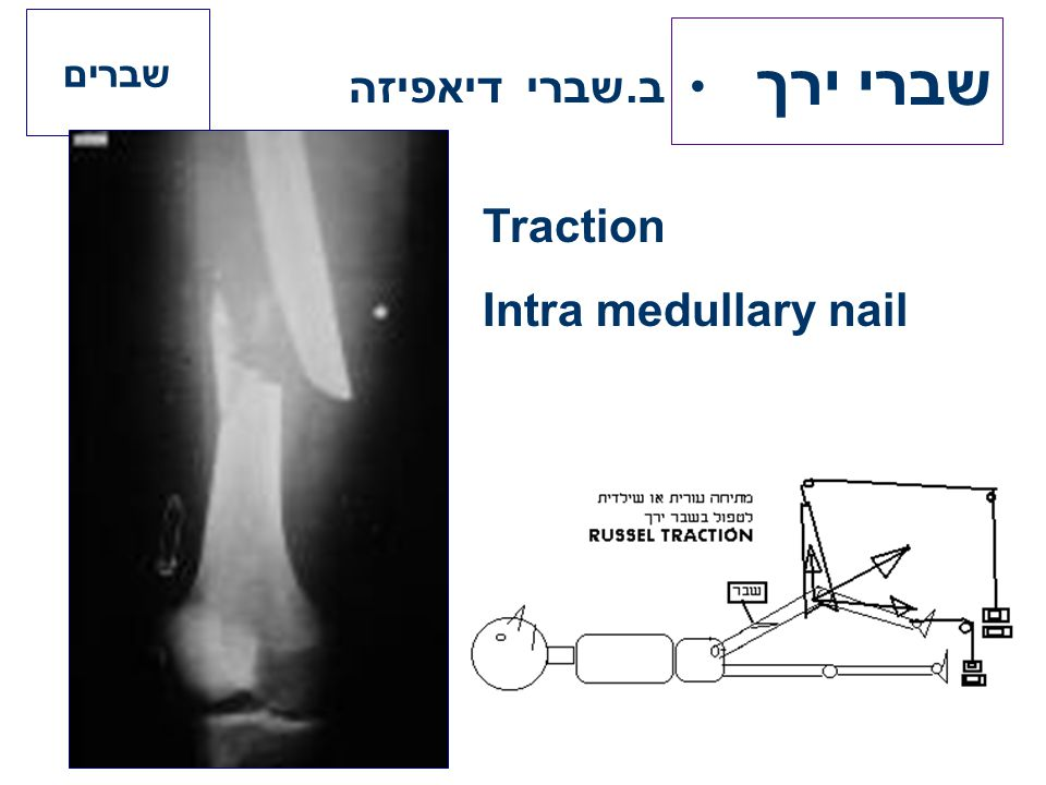 ב.שברי דיאפיזה שברים שברי ירך Traction Intra medullary nail