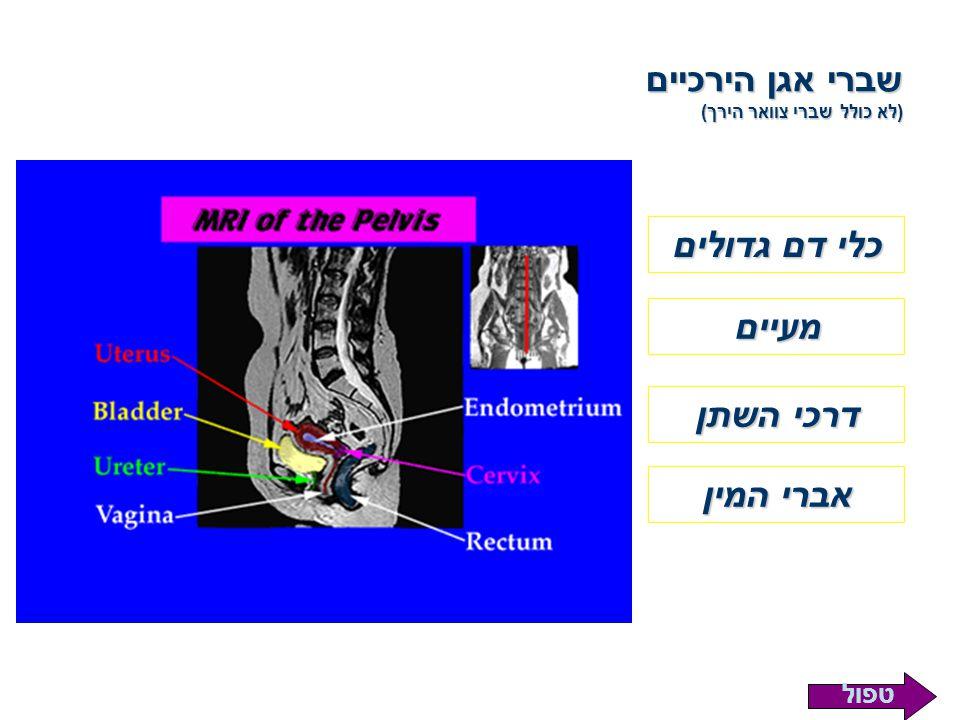 שברי אגן הירכיים (לא כולל שברי צוואר הירך)