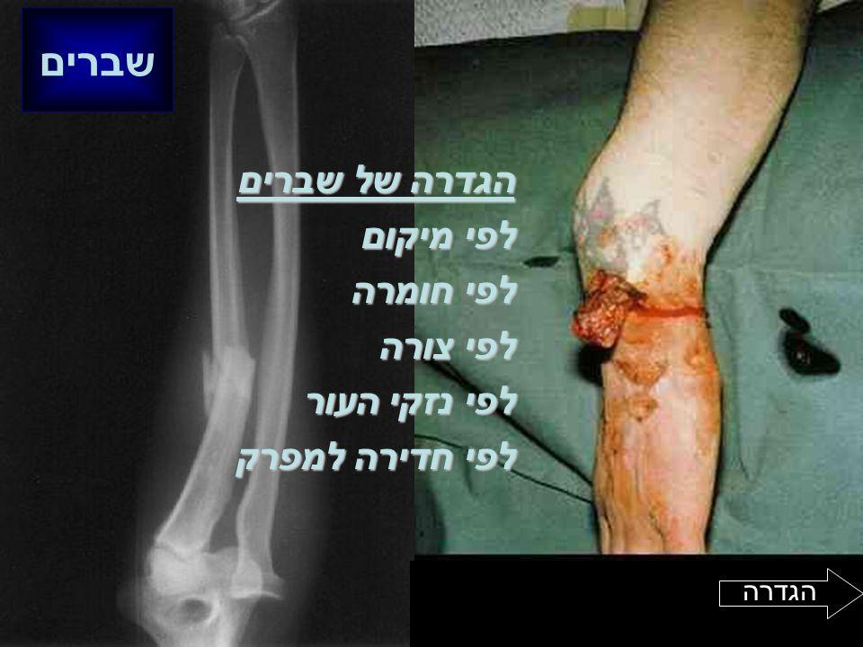 שברים הגדרה של שברים לפי מיקום לפי חומרה לפי צורה לפי נזקי העור