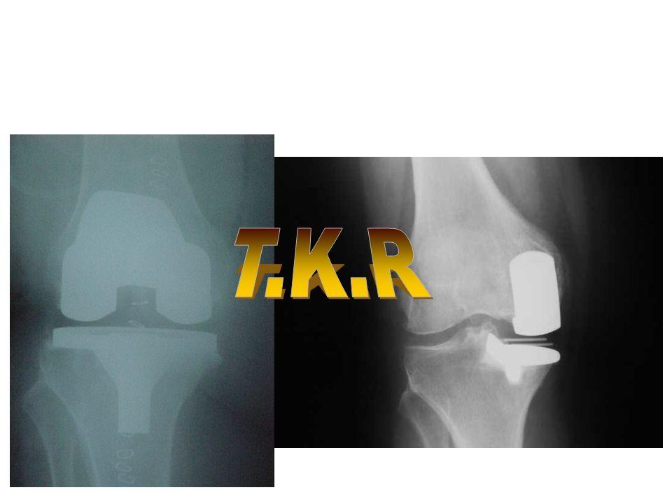 T.K.R