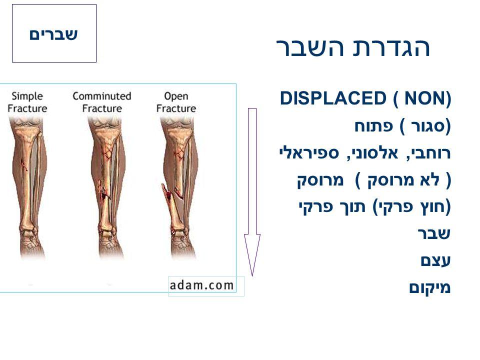 הגדרת השבר שברים DISPLACED ( NON) (סגור ) פתוח רוחבי, אלסוני, ספיראלי
