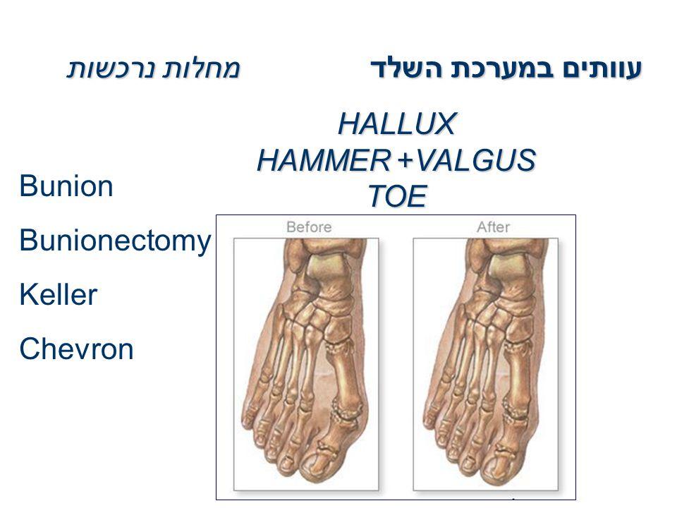 HALLUX VALGUS+HAMMER TOE