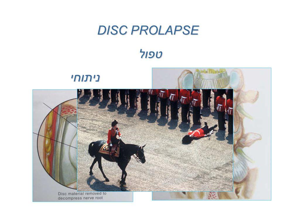 DISC PROLAPSE טפול ניתוחי שמרני
