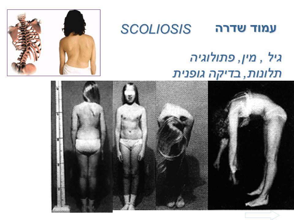עמוד שדרה SCOLIOSIS גיל , מין, פתולוגיה תלונות, בדיקה גופנית