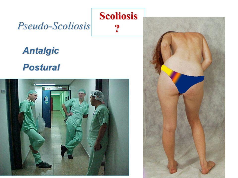 Scoliosis Pseudo-Scoliosis Antalgic Postural