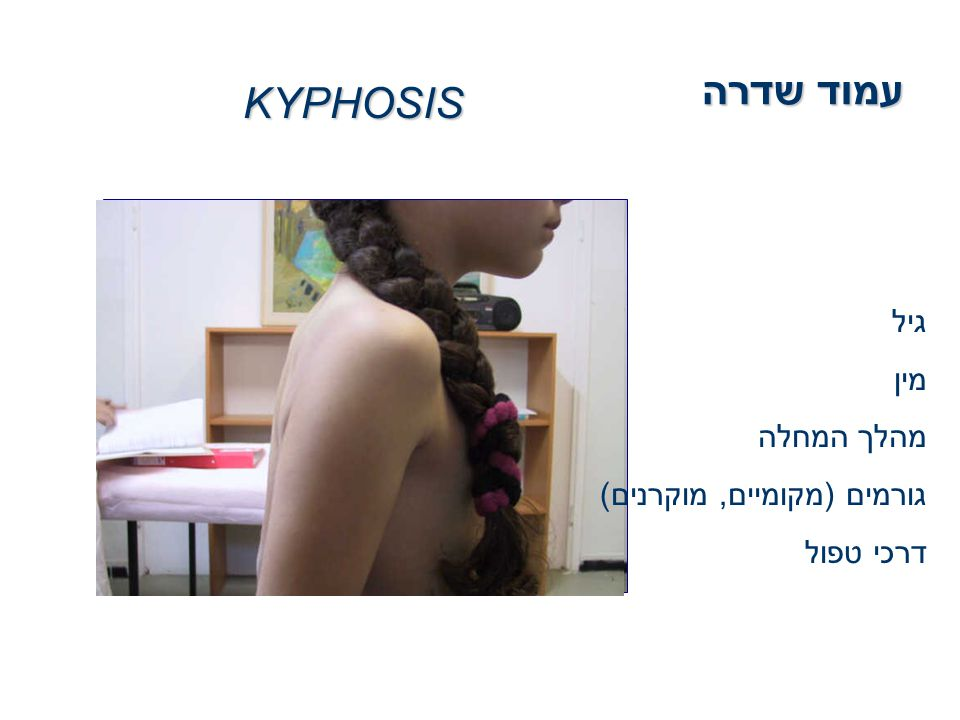 עמוד שדרה KYPHOSIS גיל מין מהלך המחלה גורמים (מקומיים, מוקרנים)