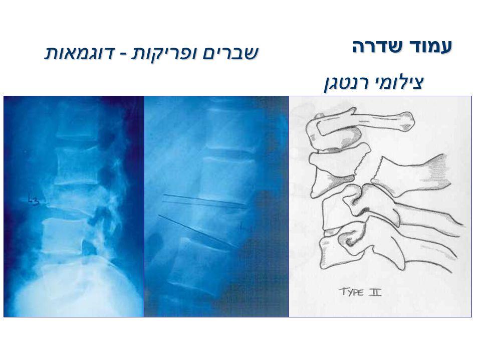 שברים ופריקות - דוגמאות