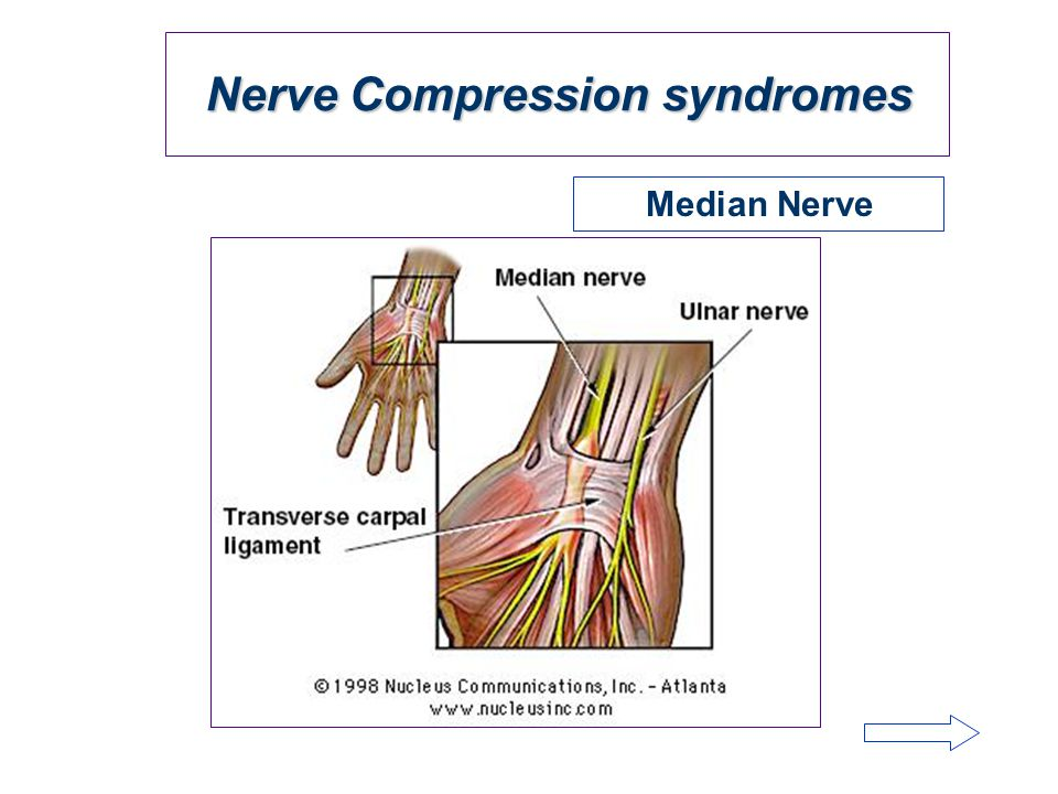 Nerve Compression syndromes