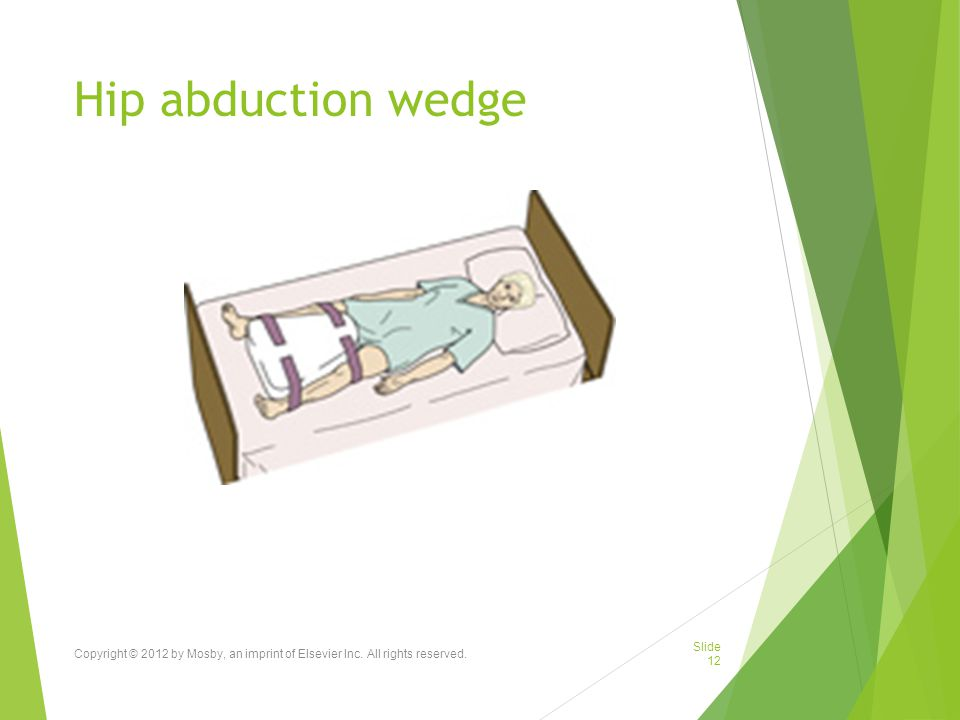 Hip abduction wedge Copyright © 2012 by Mosby, an imprint of Elsevier Inc. All rights reserved.