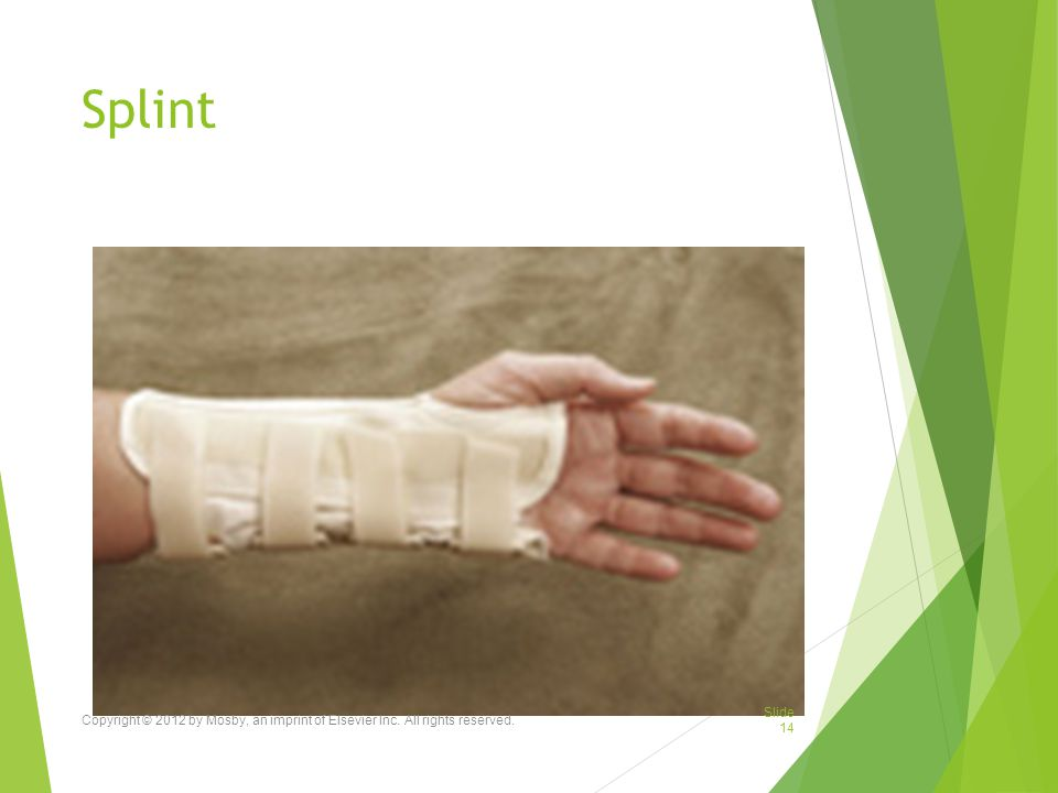 Splint Copyright © 2012 by Mosby, an imprint of Elsevier Inc. All rights reserved.