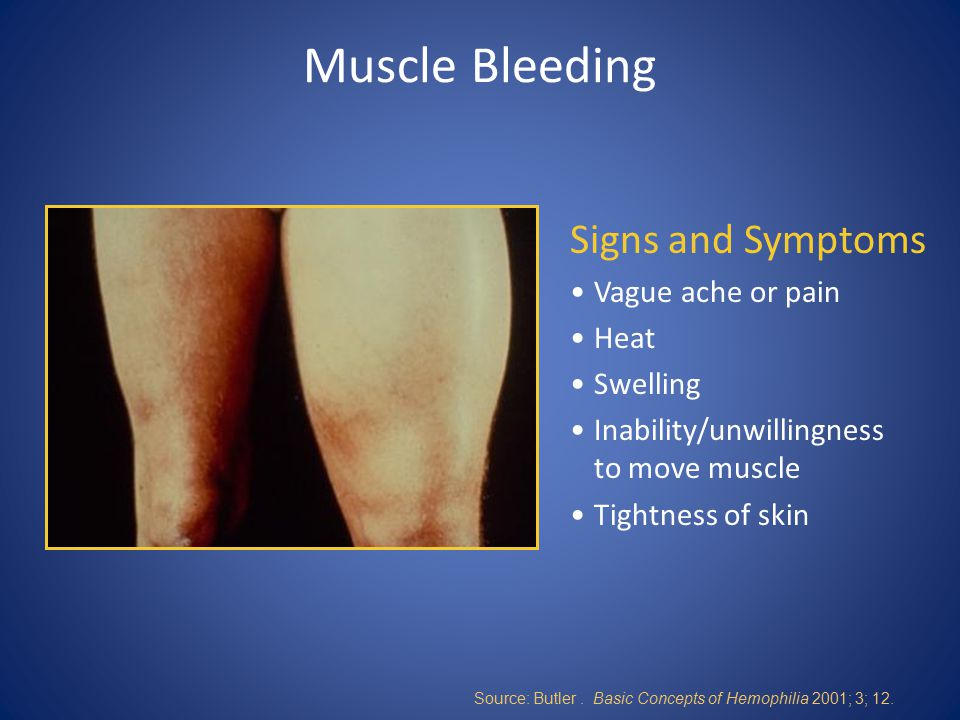Muscle Bleeding Signs and Symptoms Vague ache or pain Heat Swelling