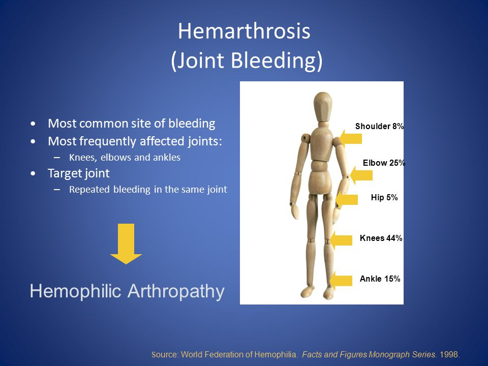 Hemarthrosis (Joint Bleeding)