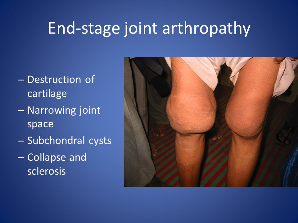 End-stage joint arthropathy