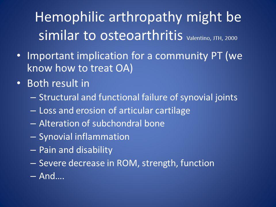 Hemophilic arthropathy might be similar to osteoarthritis Valentino, JTH, 2000