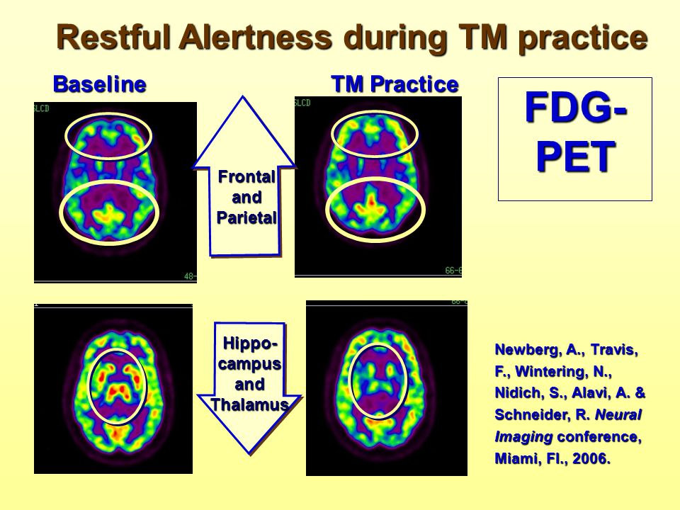 Restful Alertness during TM practice