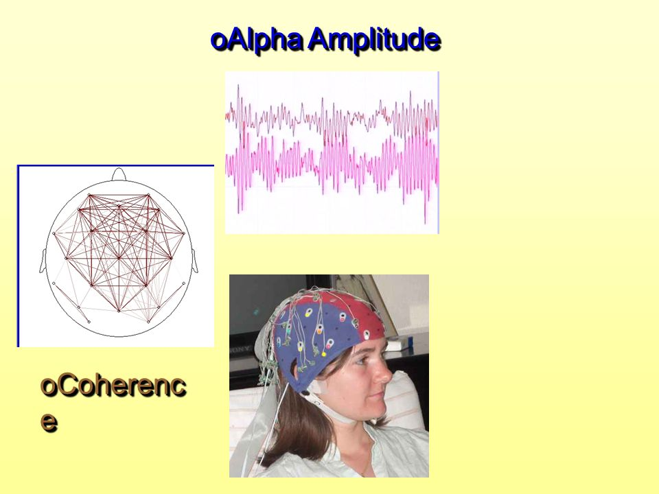 Alpha Amplitude Coherence