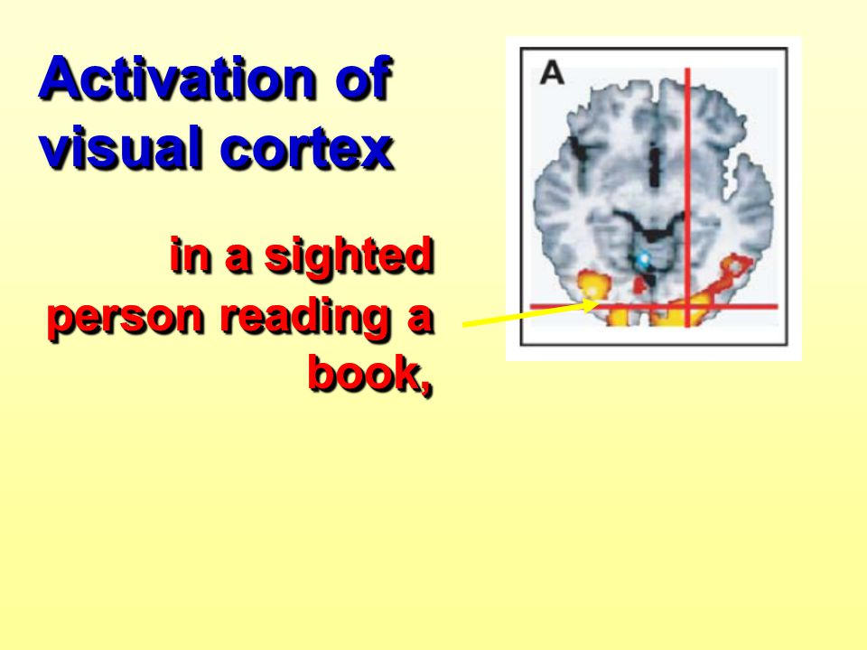 Activation of visual cortex