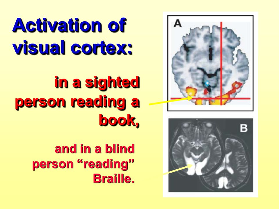 Activation of visual cortex: in a sighted person reading a book,