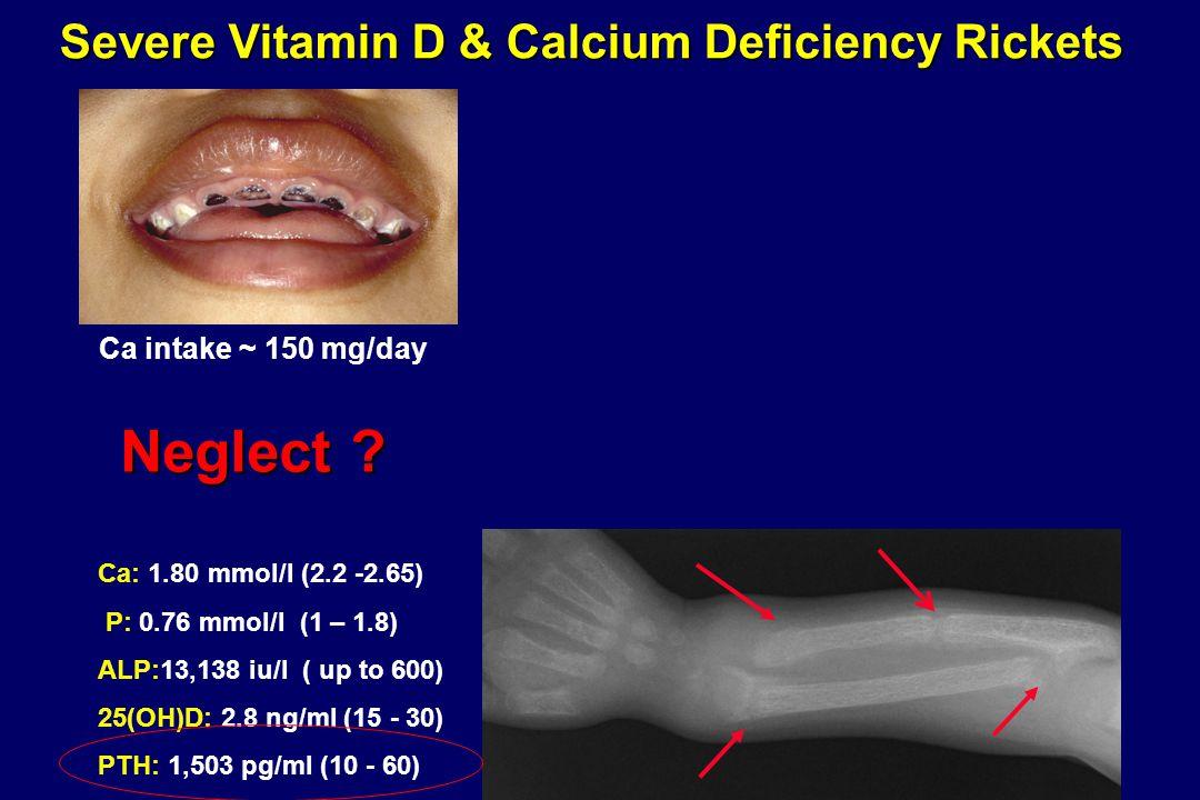 Severe Vitamin D & Calcium Deficiency Rickets