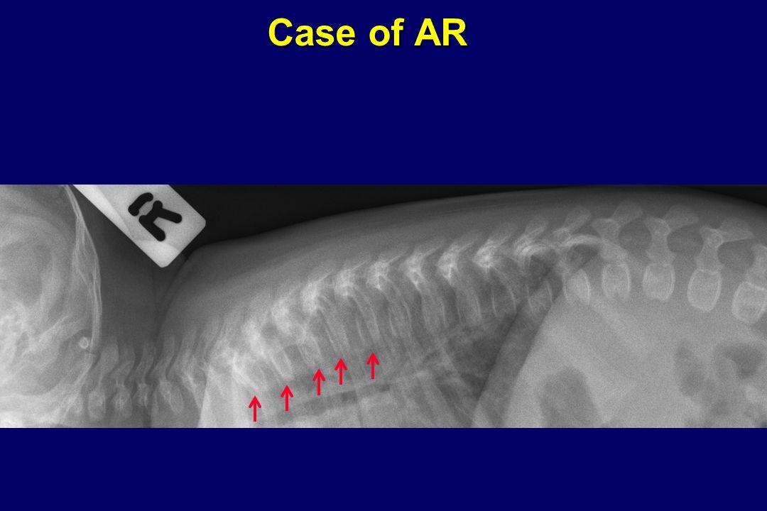 Case of AR