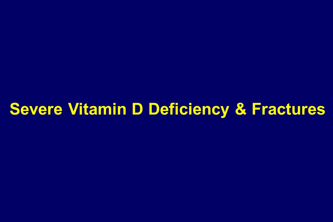 Severe Vitamin D Deficiency & Fractures