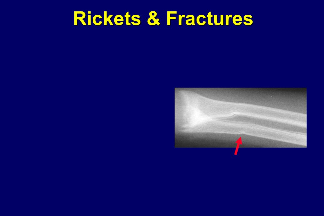 Rickets & Fractures